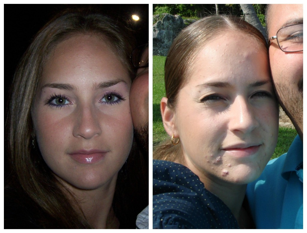 From 2006 to 2007, my skin went from glowing to gruesome.