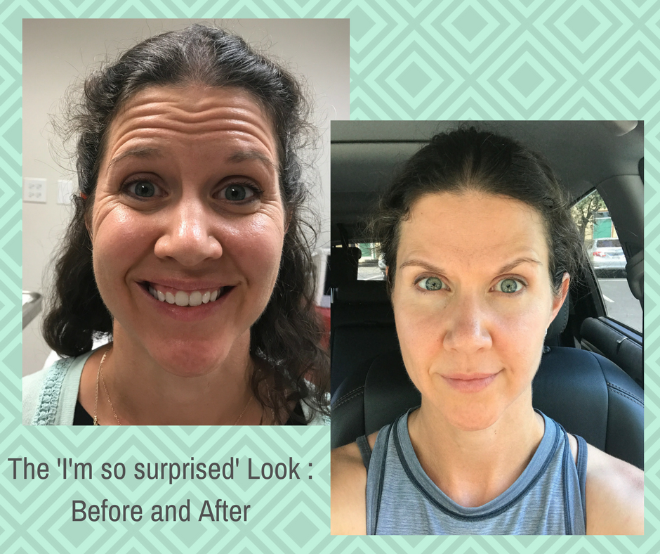 My First Experience with Botox and Lip Filler: The Day I Let Someone